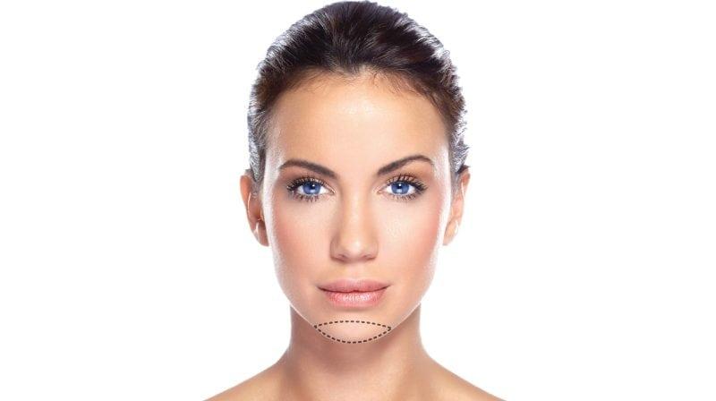 7c7f778ea Cirurgia para deixar o Rosto Quadrado | Mentoplastia ou Cirurgia de ...