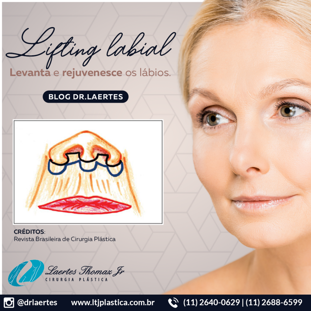 lifting labial